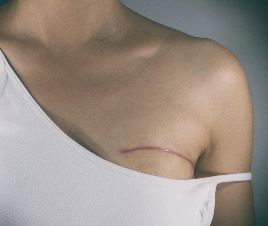 Tumore al Seno: Tatuaggi per Coprire le Cicatrici Gratuiti nel Lazio