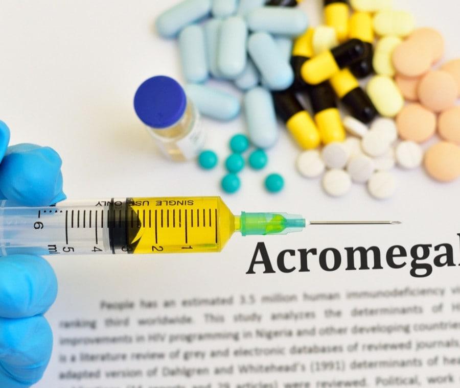 GH e Doping: Acromegalia e Pericoli per la Salute