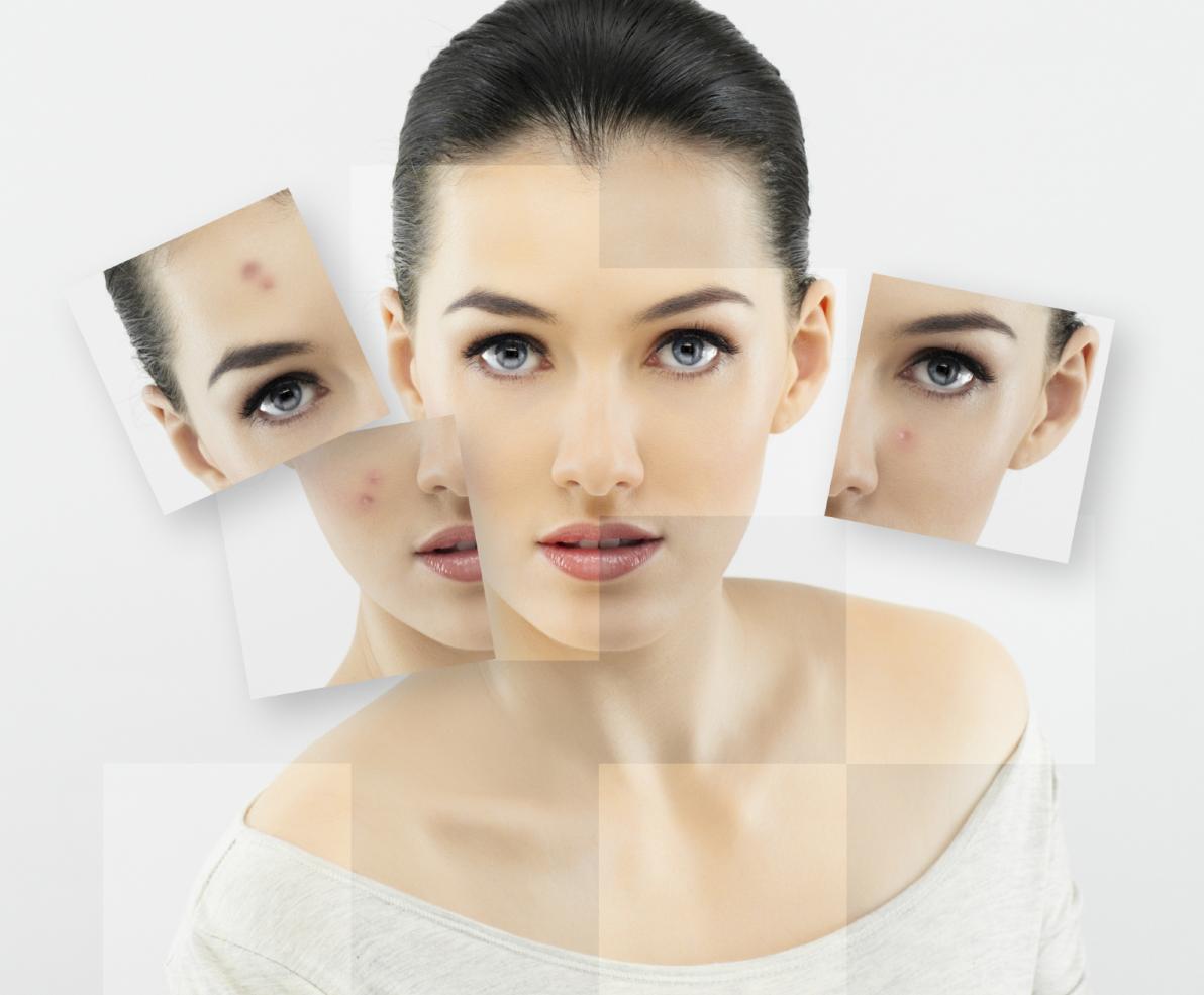 Acne: 7 falsi miti da sfatare