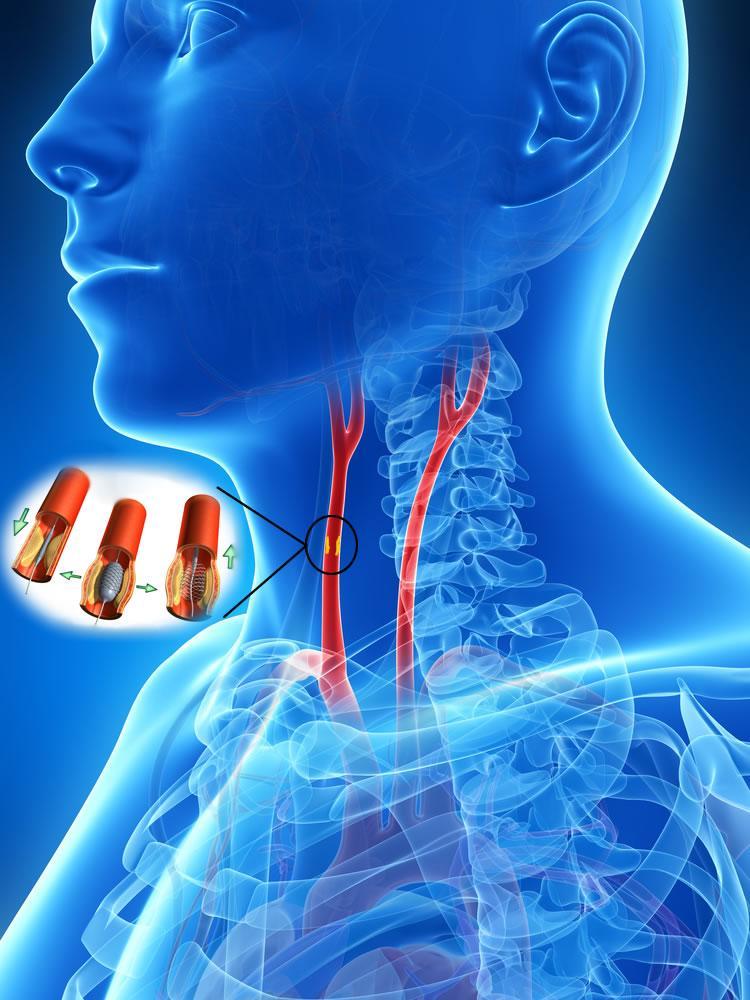 Angioplastica carotidea con stenting