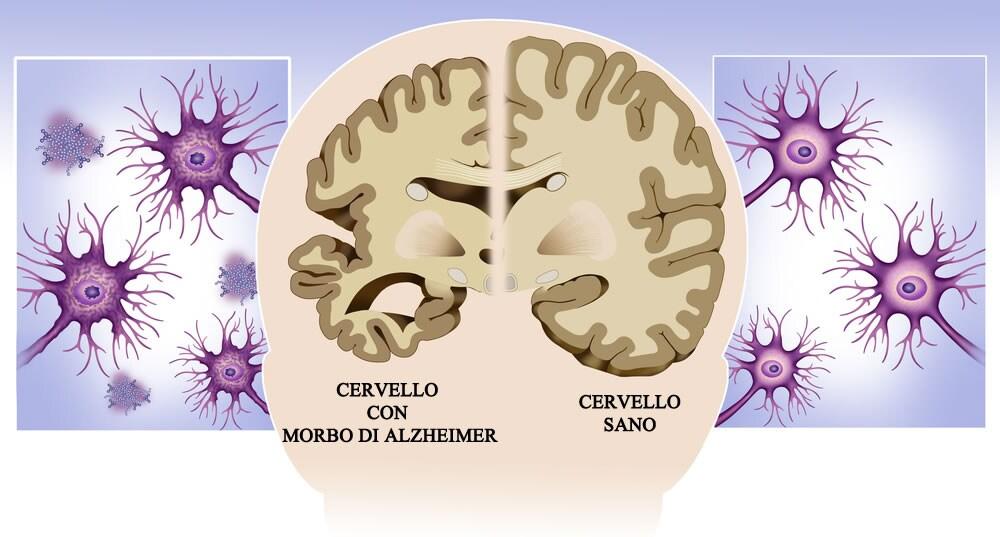 Morbo di Alzheimer: 10 segni tipici della malattia
