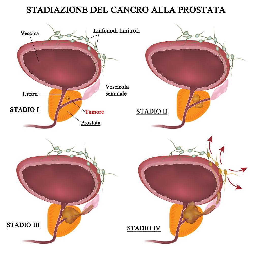 Stadi di gravità del cancro alla prostata