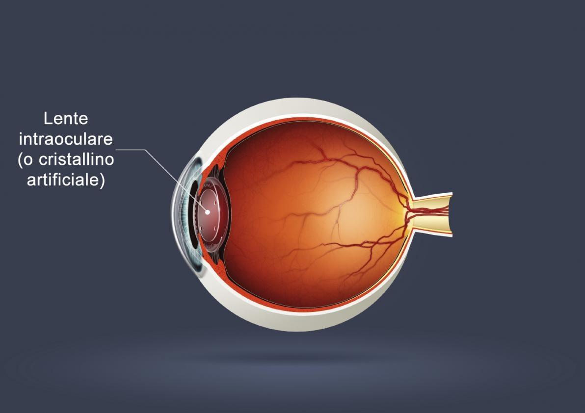 Posizione del cristallino artificiale nell'occhio