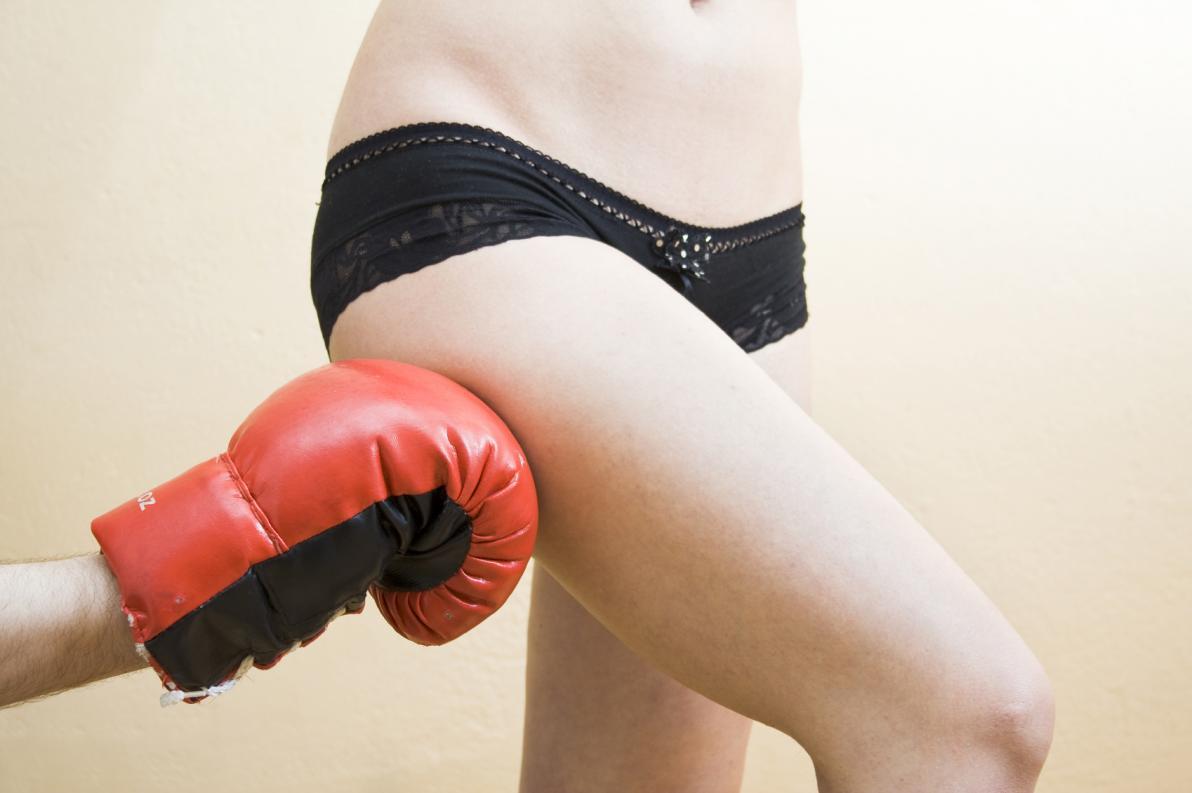 Cellulite: 5 dubbi comuni