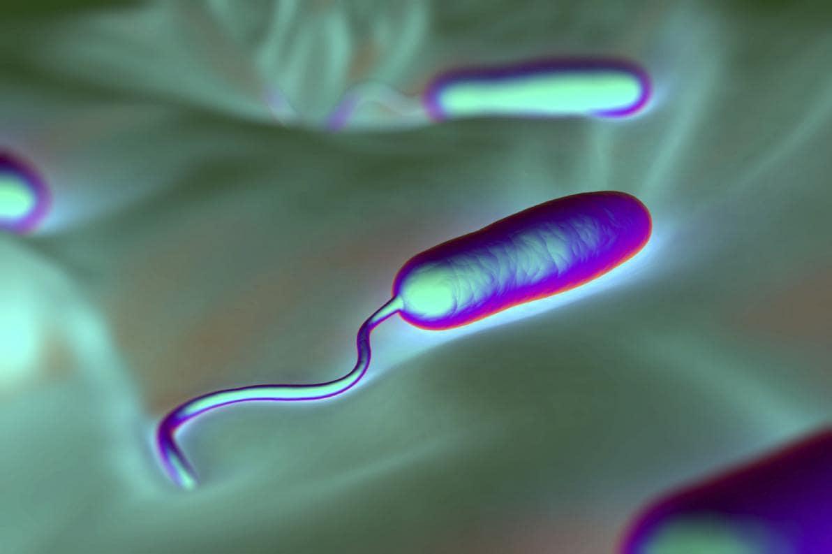 Cause dell'epidemia di colera ad Haiti