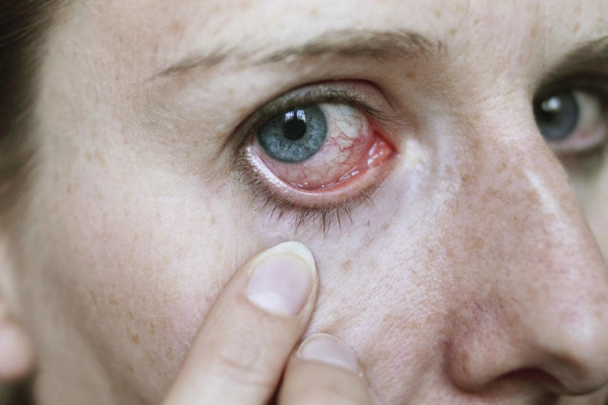 Complicanze allergia oculare