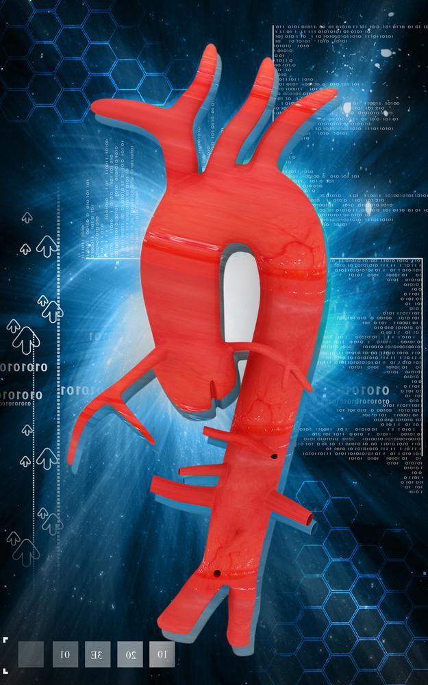 Arco aortico isolato dal cuore