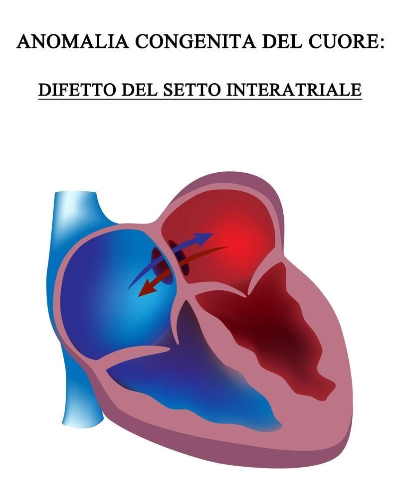 Che cosa s'intende per difetto interatriale del cuore?