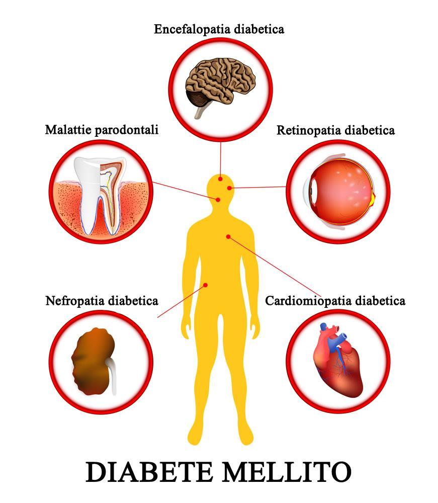 Complicazioni diabete mellito