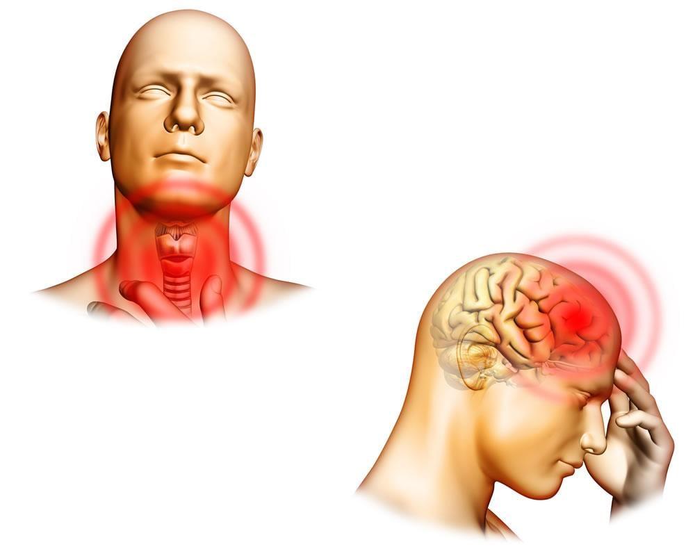 Encefalopatia di Hashimoto