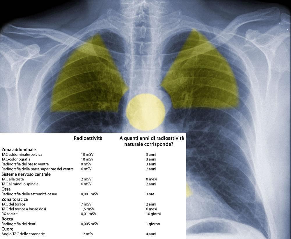 Radiografia del torace e tabella delle dosi di radioattività di alcuni esami radiologici