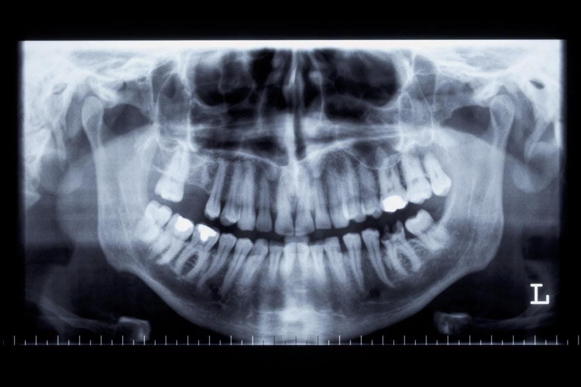 Immagine di una ortopantomografia