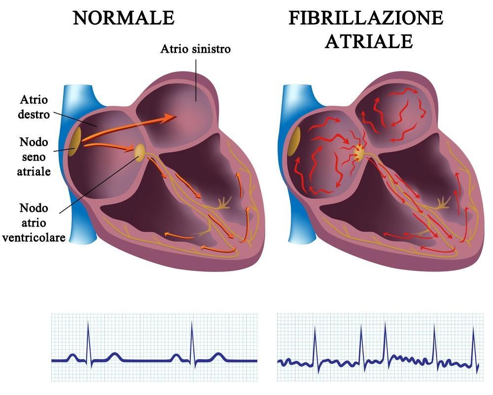 Fibrillazione atriale, l'aritmia cardiaca più diffusa nell'essere umano
