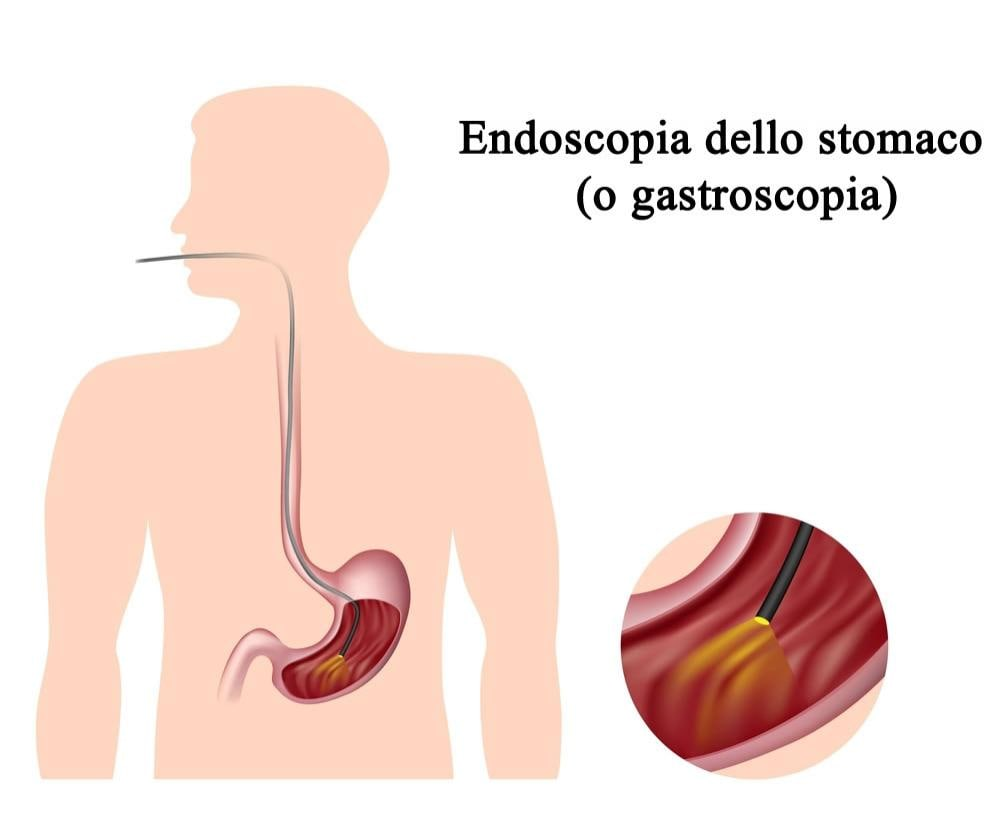 Endoscopia apparato digerente