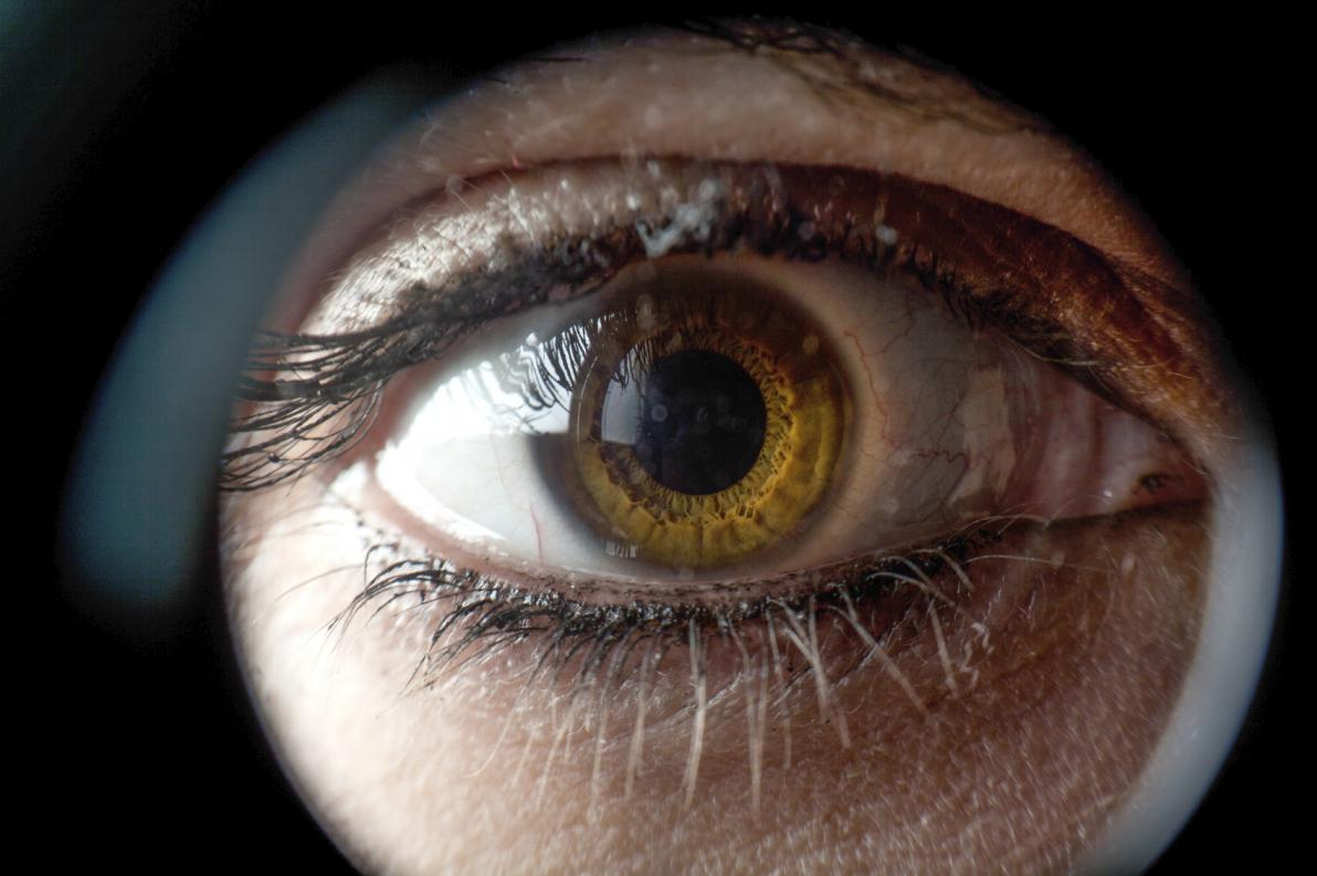 Glaucoma pseudoesfoliativo e glaucoma pigmentario