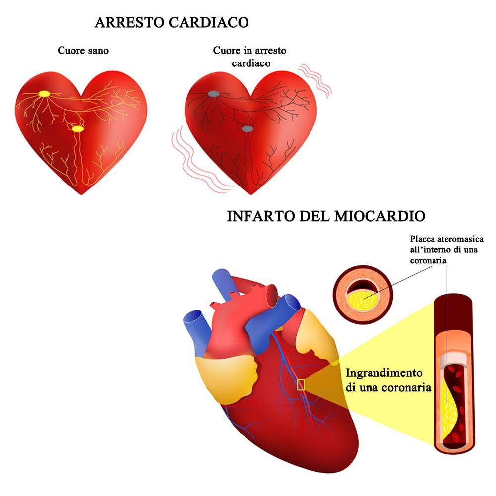 Confronto fra arresto cardiaco e attacco di cuore