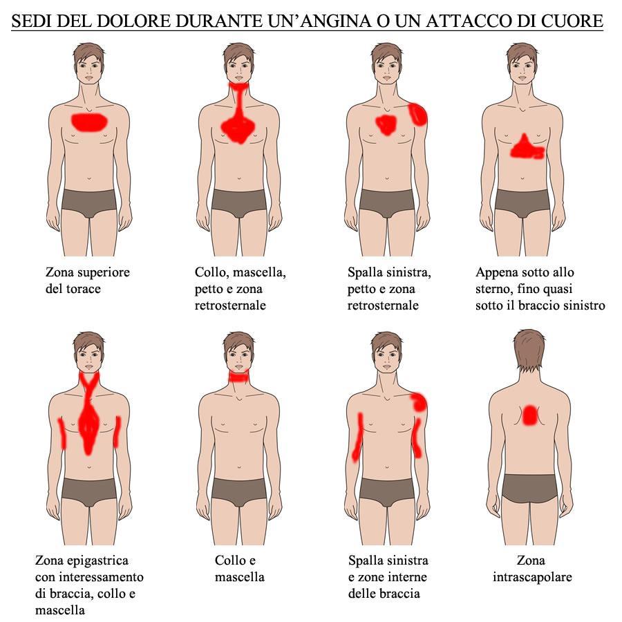 Tutte le possibili sedi del dolore durante un episodio di angina o attacco di cuore