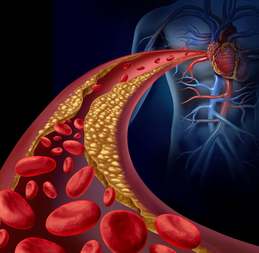 Infarto e aterosclerosi