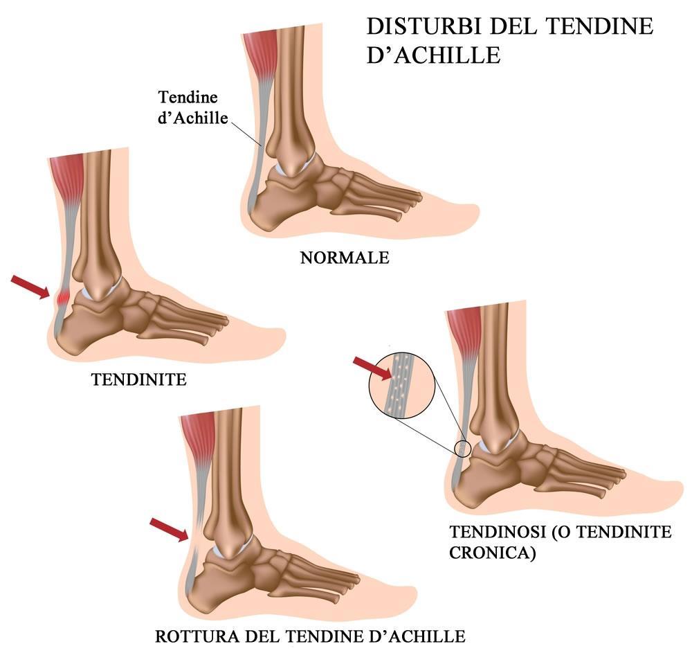 Disturbi del tendine d'Achille: tendinite e rottura
