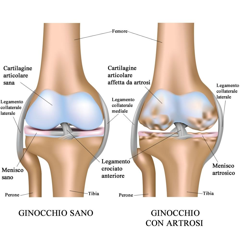 Confronto cartilagine ginocchio sano con cartilagine ginocchio artrosico