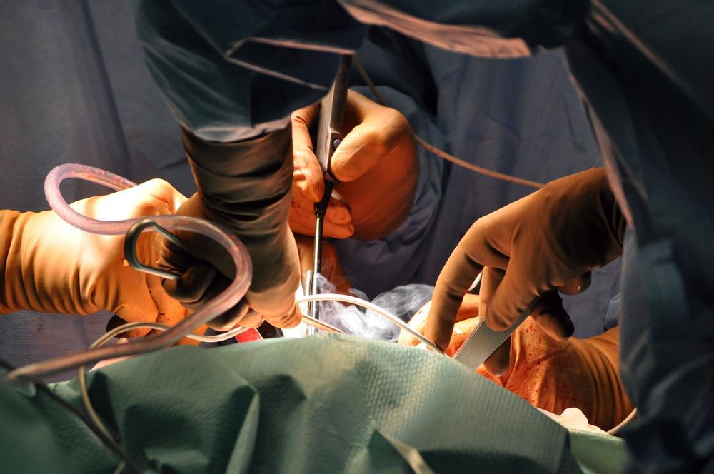 Impianto chirurgico di un cuore artificiale totale