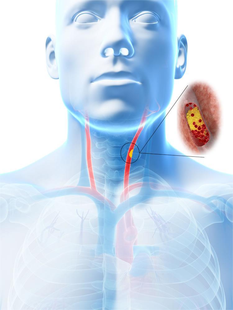 Occlusione delle arterie carotidi