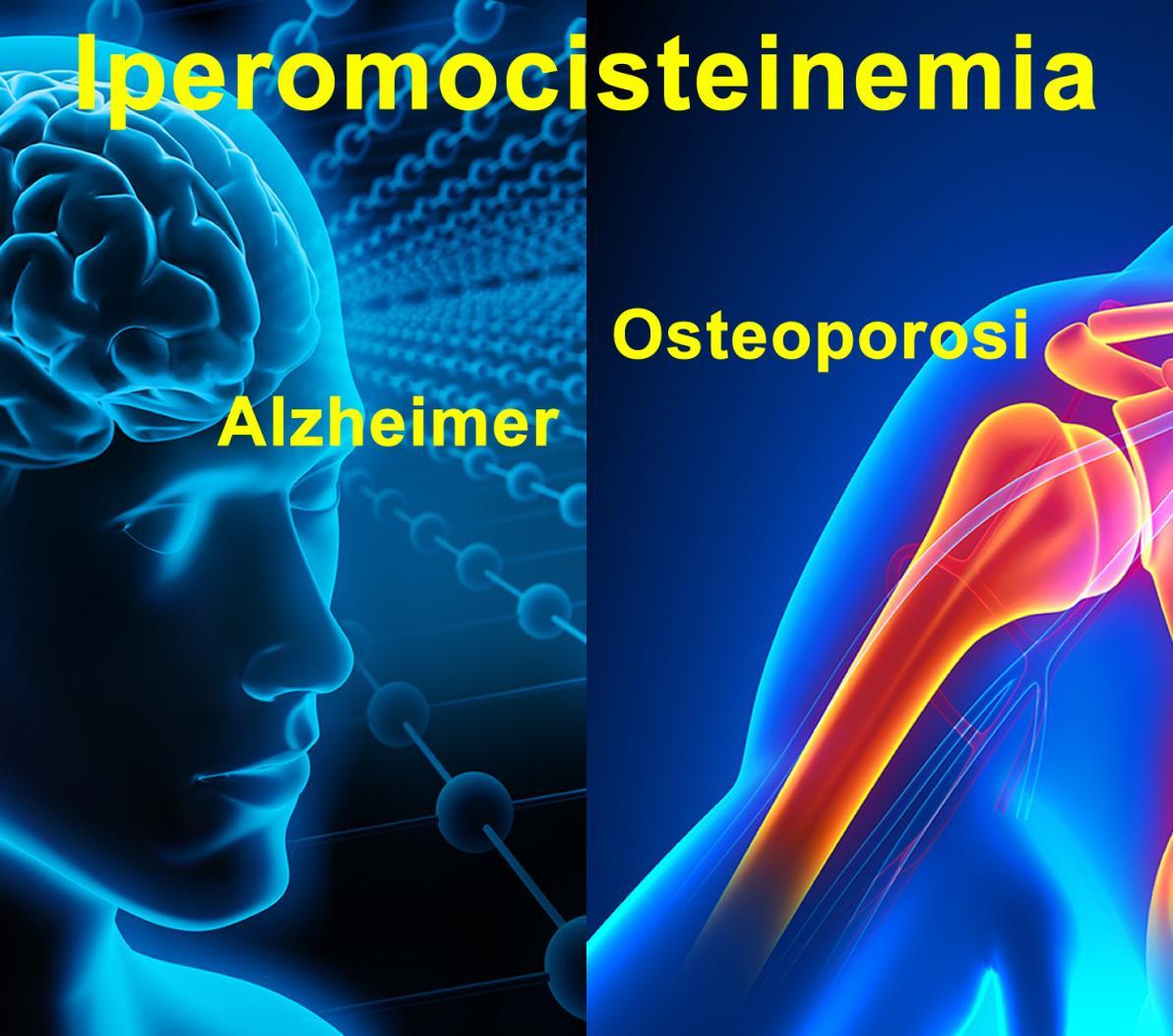 Omocisteina: Malattie Psichiatriche e dello Scheletro