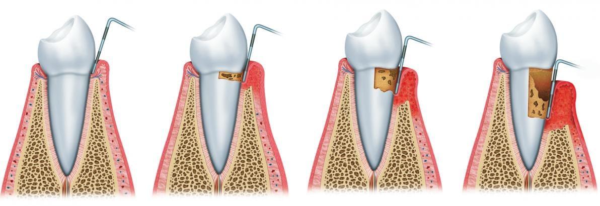 Progressione della parodontite