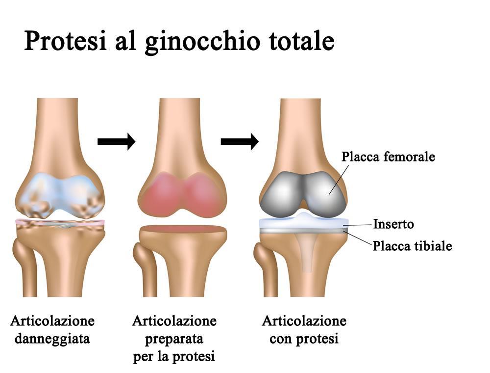 Procedura protesi al ginocchio