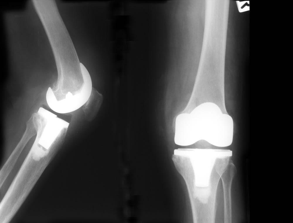 Radiografia di una protesi al ginocchio