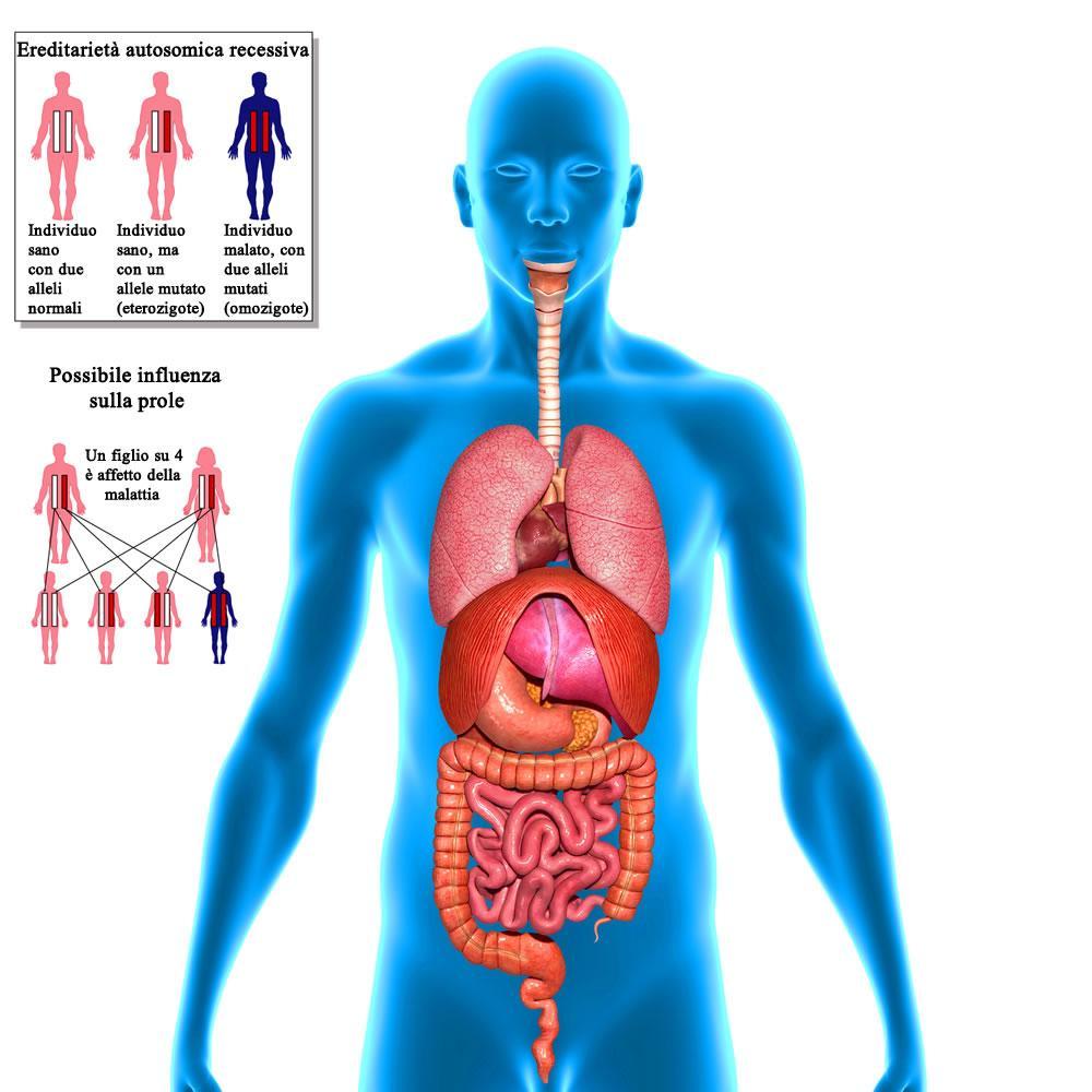 Corpo umano con situs inversus totale e ereditarietà recessiva