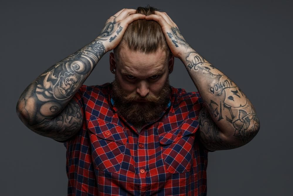 Cancellare un tatuaggio