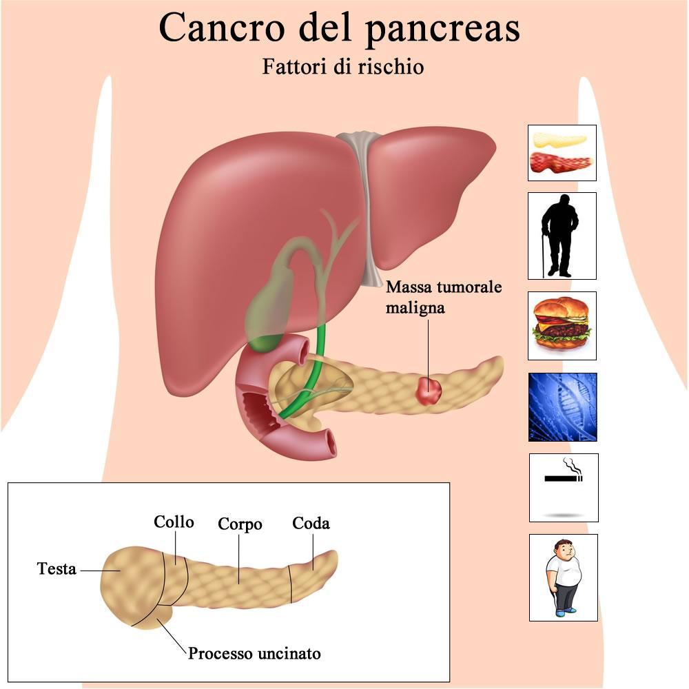 Cancro del pancreas e fattori di rischio
