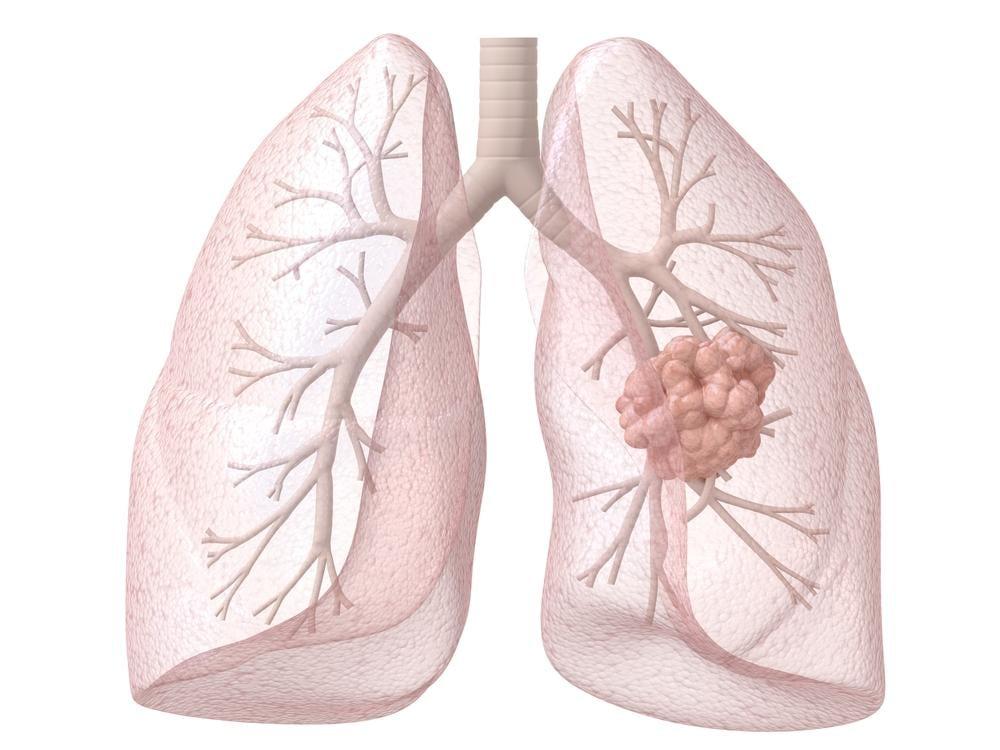 Tumore al polmone e falsi miti
