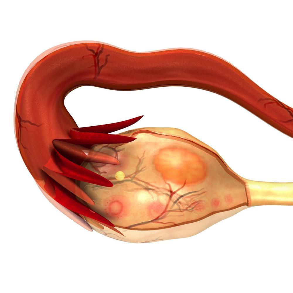 Cancro alle ovaie: tra miti e verità