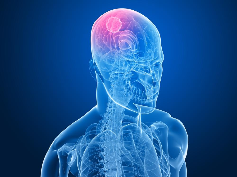 Tumori al cervello: le tipologie più importanti