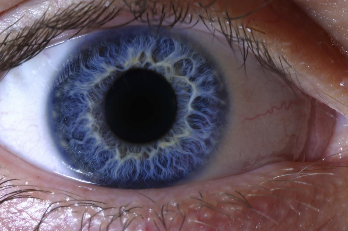 Movimenti oculari saccadici