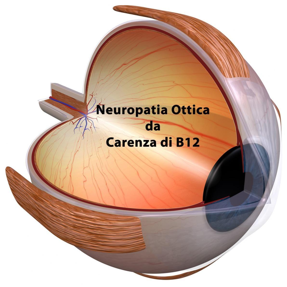 Neuropatia Ottica
