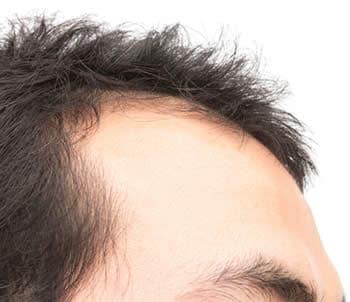 Costo trapianto capelli stempiatura