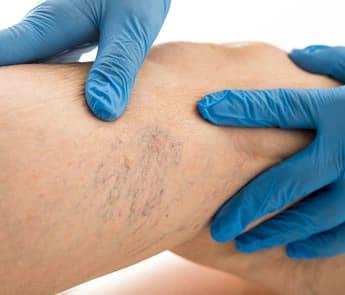 Fragilità capillare