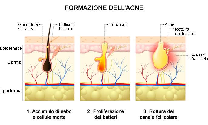 acne formazione