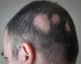 alopecia areata uomo 568267a5539b