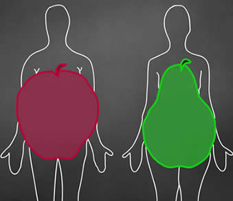 Obesità mela pera