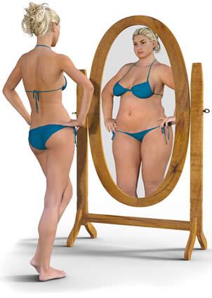 sindrome da bikini