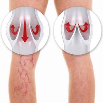 Valvole su vene di gamba