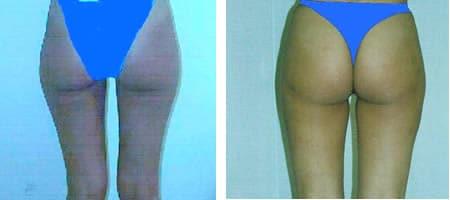 Lipoaspirazione gambe