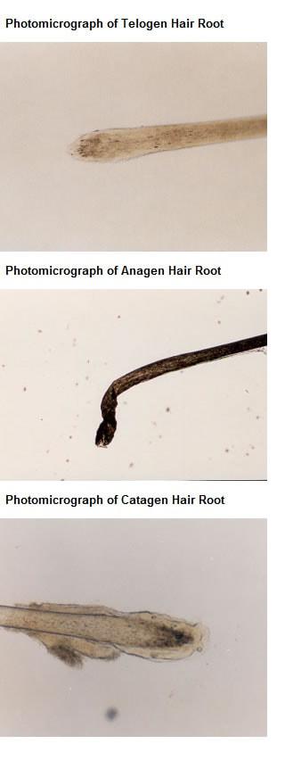 Tricogramma radici capelli al microscopio