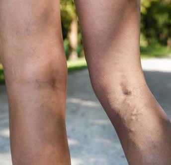 Dopo operazione un flebektomiya sotto pelle di consolidazione come trattare