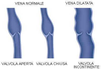 Strumenti chirurgici chirurgia vascolare