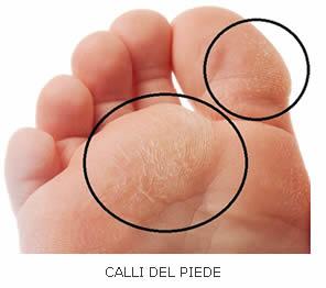 Calli Del Piede